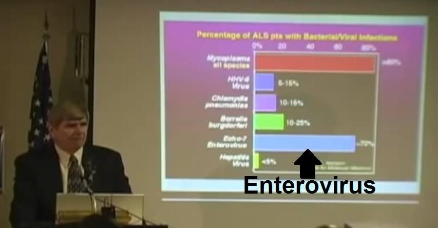 ALS-enterovirus-gulf-war