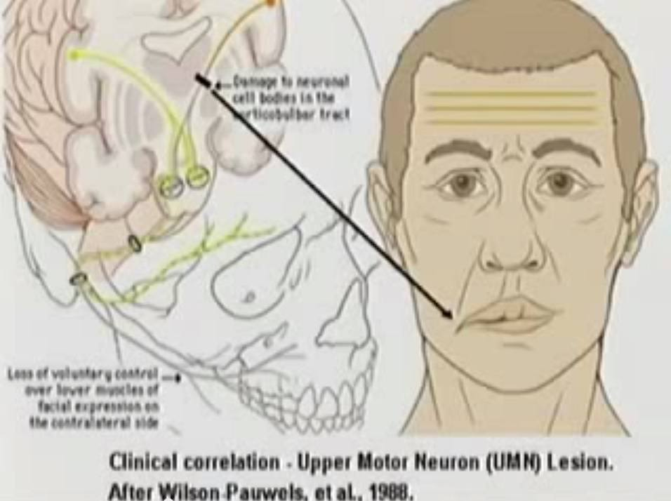 Cranial nerve damage, mouth drooping, stroke