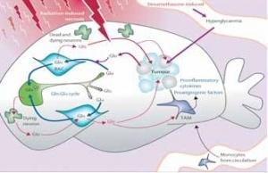 glucose accelerates brain tumor growth