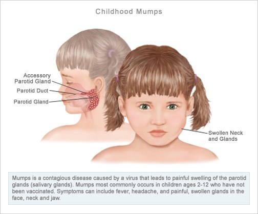 Pictures Of Adults With Mumps 94