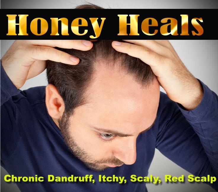 honey_heals(1)