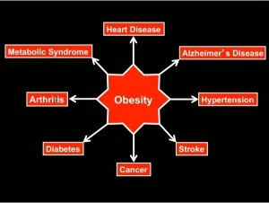 obesity-modern-diseases