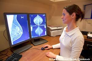 mammography-screening