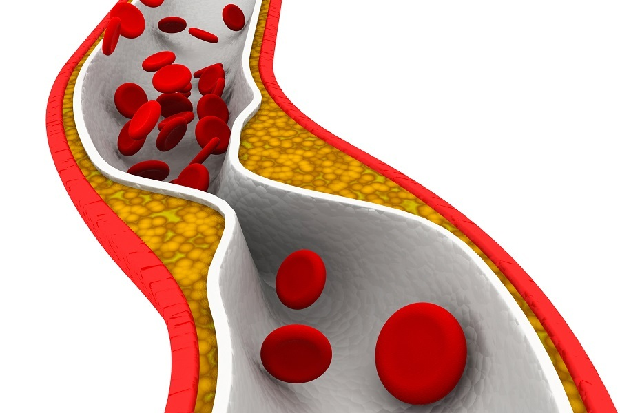 Cholesterol plaque in artery image