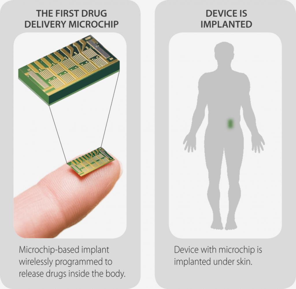 microchip-contraceptive-delivery-1024x1002