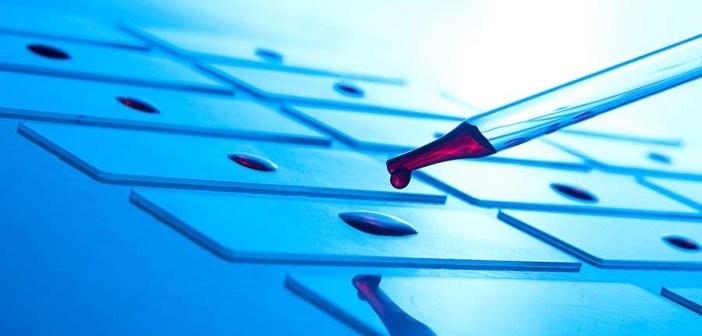 blood-slide-web-702x336