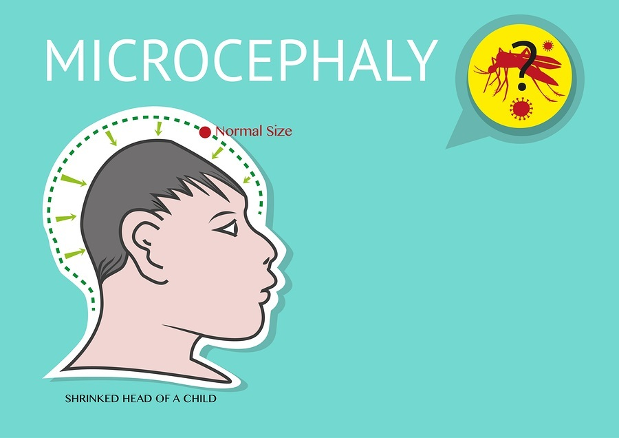 Transmitted by Aedes aegypti mosquito, Zika Virus is suspected to be the cause of microcephaly among women in their first trimester pregnancy