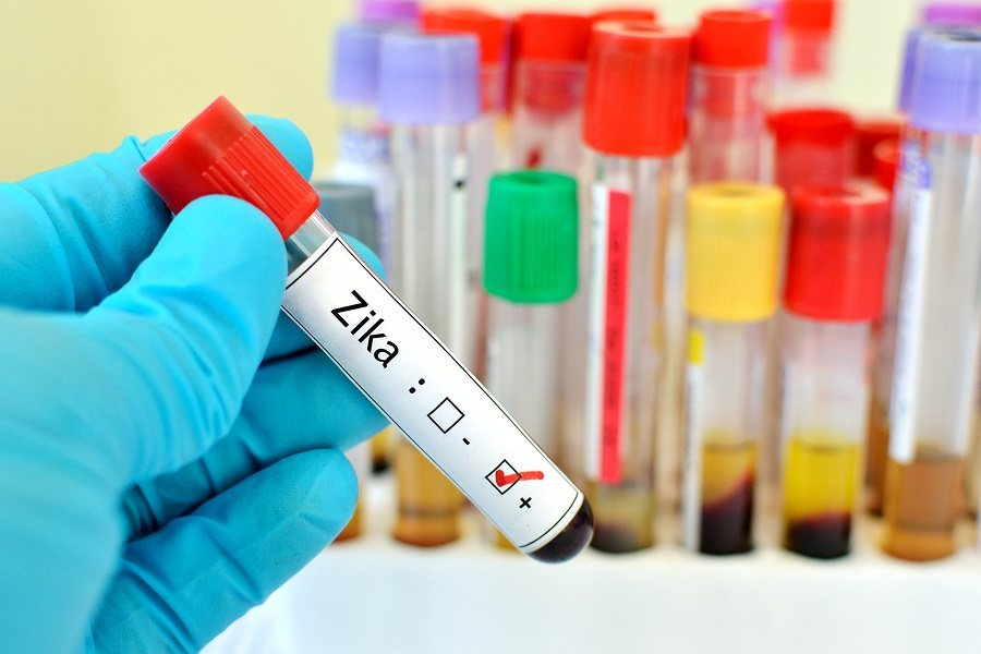 The blood sample positive with Zika virus
