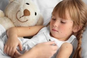 Dr. Brownstein: Chickenpox Vaccine Risk Too High – Vaccine ...