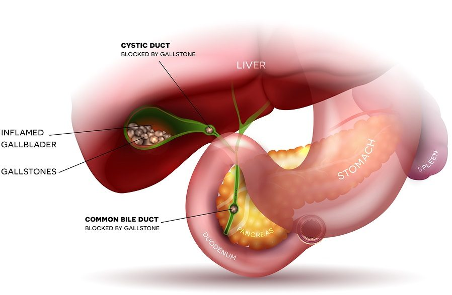 "Is the Gallbladder Really ""Not Needed"" and OK to Routinely Remove by ..."