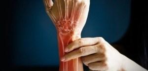 osteoarthritis-web-702x336