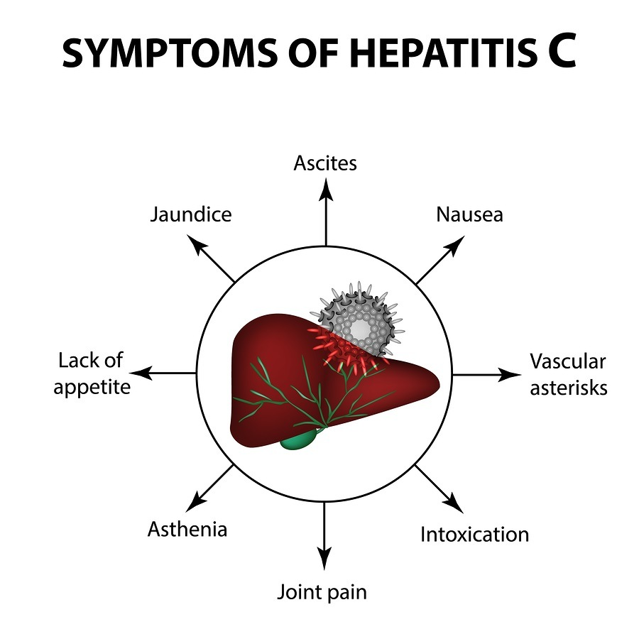 Symptoms of hepatitis C. Liver. World Hepatitis Day. July 28th. Infographics. Vector illustration on isolated background.