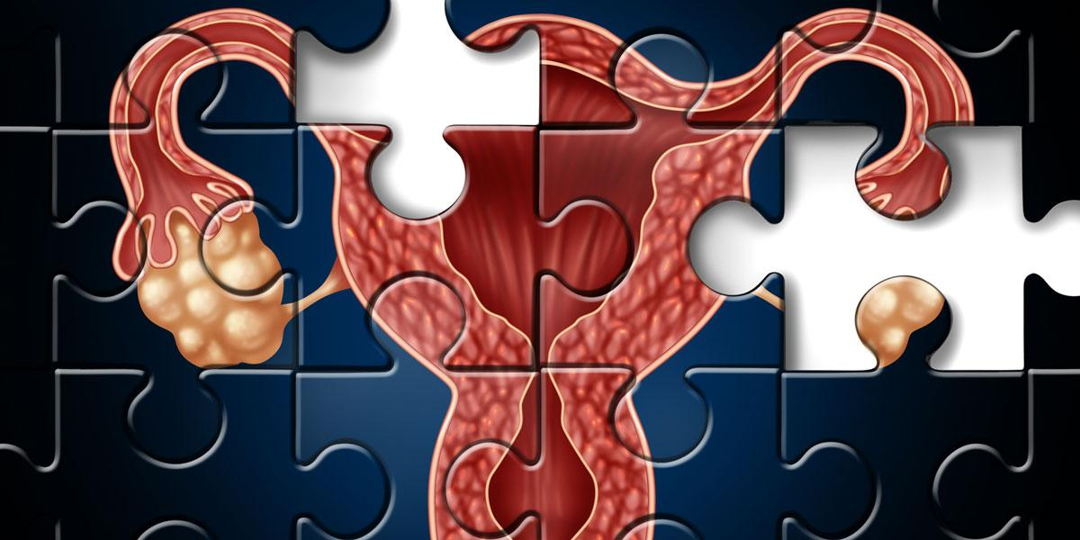 Fertility_compromized_puzzle_pieces_1200x600