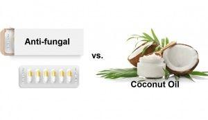 anti-fungal-drugs-vs-Coconut-Oil-image-300x173